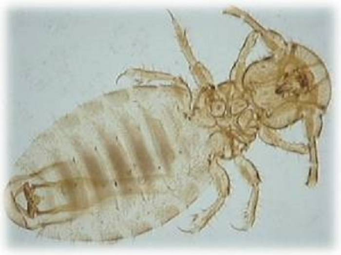 Lice problems in the UK are caused by the biting/chewing louse, not sucking lice.